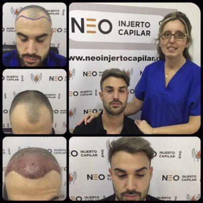 neo-injerto-capilar
