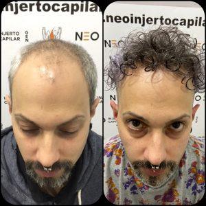 neo-injerto-capilar-caso-1