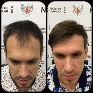 neo-injerto-capilar-caso-3