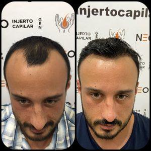 neo-injerto-capilar-caso-4